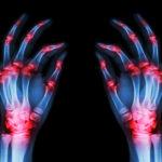artrozsis-autoimmun-transfer-factor
